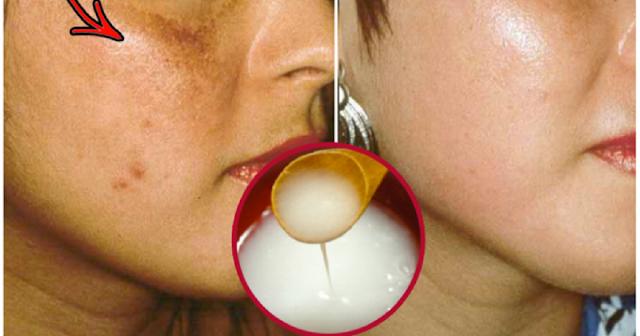 Appliquer ce masque de bicarbonate et masque de vinaigre de cidre pendant 5 minutes et regarder les résultats: vos taches et l'acné disparaîtront comme magie!
