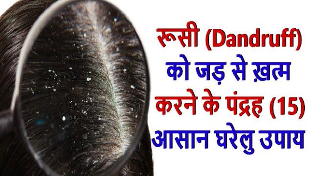 Baba Ramdev Tips and Home Remedies To Get Rid of Dandruff- डैंड्रफ के घरेलू उपचार