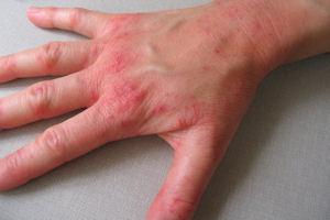 Obat Untuk Penyakit Gatal Gatal