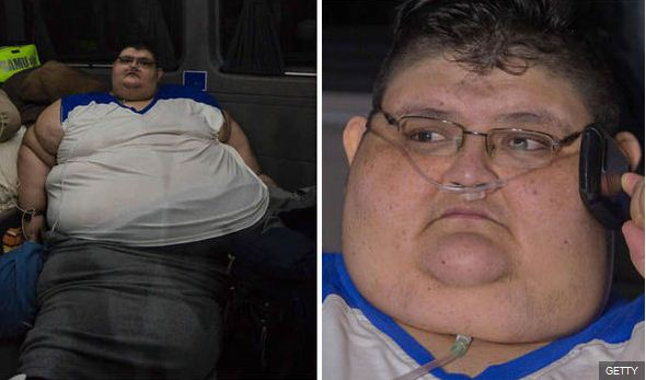 Photos: World's Fattest Man Struggles To Walk For The First Time In 6 years