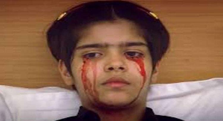 दुनियाभर के डाक्टर भी हैरान इस बच्ची की अनोखी बीमारी के बारे में जानकर !! - Taaza Khoj