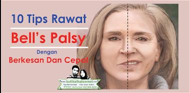 10 Tips Rawat Bell's Palsy Dengan Berkesan Dan Cepat