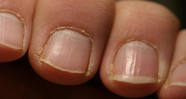 Your Nails Immediately See A Doctor!