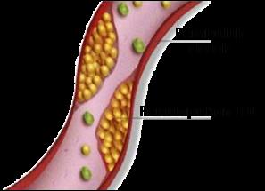 Buah Delima untuk Kolesterol