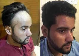saç ekimi öncesi ve sonrası foto 33