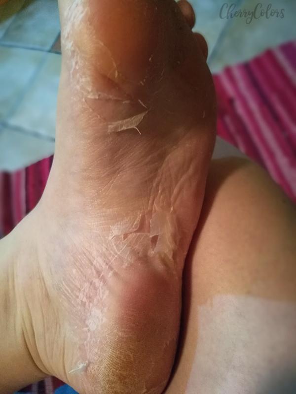 peeling feet