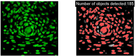 Basic cell counting and segmentation in Matlab | Ideas, thoughts and