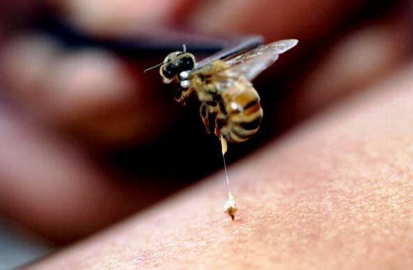 Nanoparticles Loaded With Bee Venom Kill HIV