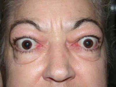 exoftalmos , hipertiroidismo, tiroides, malfunción