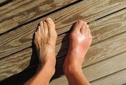 Gejala Dan Penyebab Penyakit Pirai Atau Gout