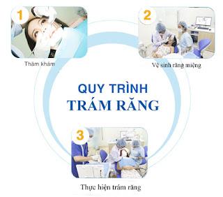 Quy trình ghép răng implant