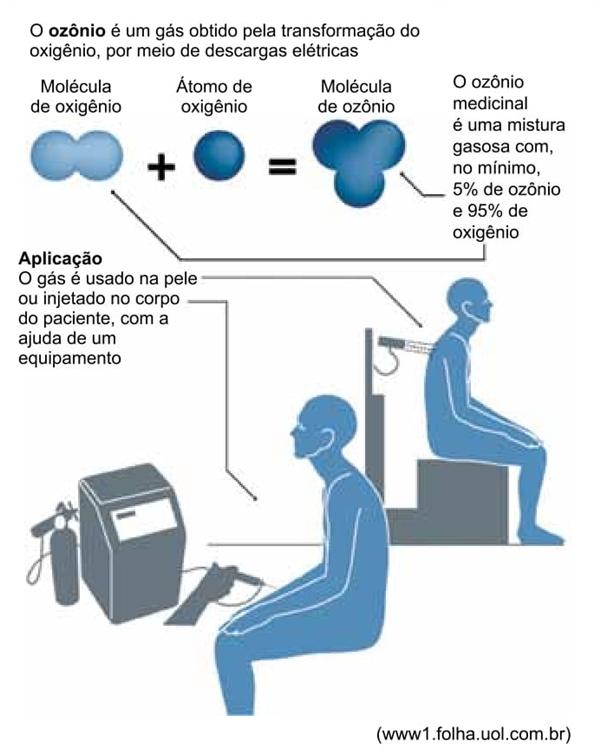 o esquema da ozonioterapia está ilustrado a seguir