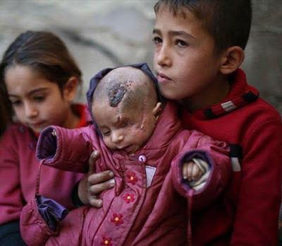 Aksi Solidaritas Untuk Bayi Karim, Warganet Menutup Satu Mata