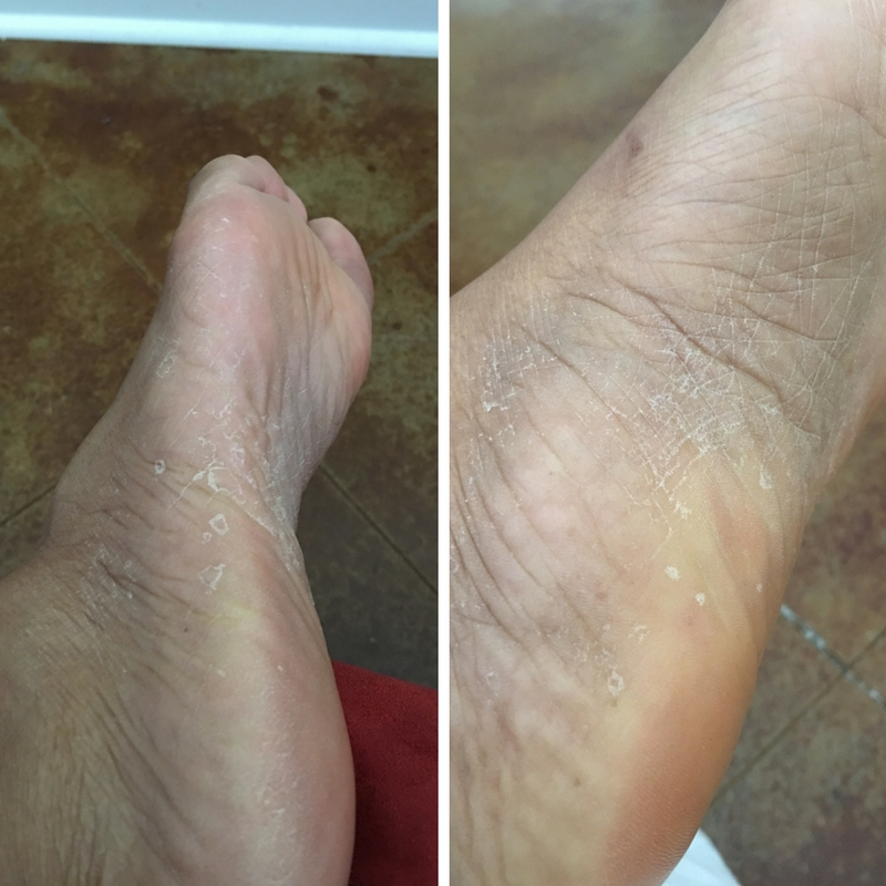 Diatomaceous Earth: A Skin & Nail Regenerator |