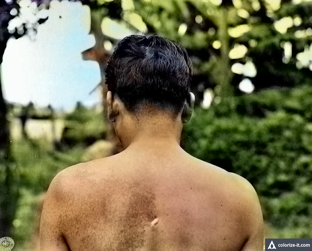 A man shows bayonet wound on his back. Image source:  United States National Archives.