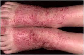 obati gatal eksim koreng berair pada kaki