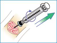 intraósea intraóseo EZIO EZ-IO retirar quitar luer-lock aguja