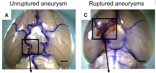 図:ネズミの脳動脈瘤