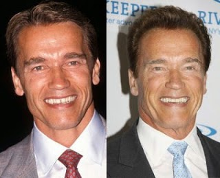 Arnold facial hodder plastic publication reconstructive surgery