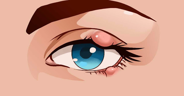 How you can treat a painful stye without special medication – and prevent another