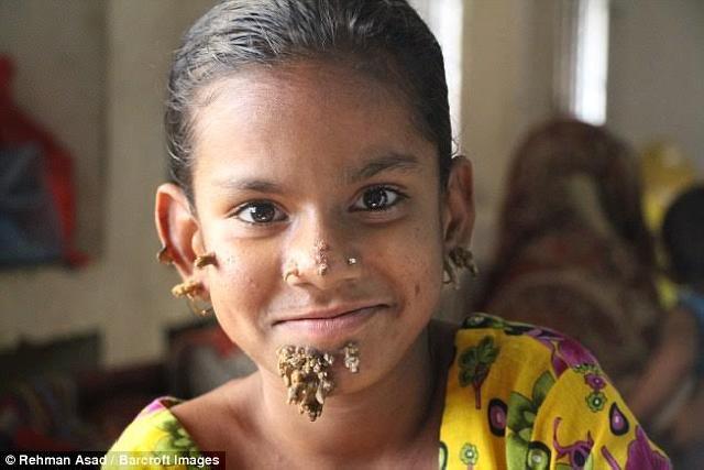 Sahana, asal Bangladesh yang terkena sindrom manusia pohon