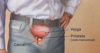 Cáncer de próstata: ¿Quién corre más riesgo?