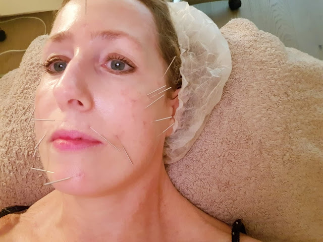 Acupuncture anti-âge