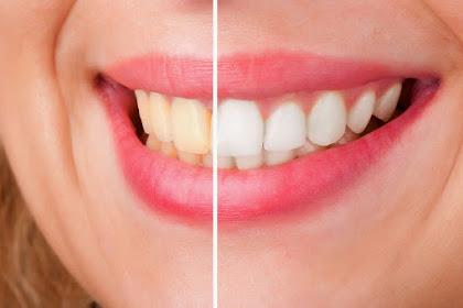 Ingin Gigi Putih Bersinar ? Bahan Alami Berikut Dapat Membantu Memutihkan Gigi Anda