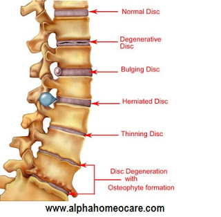 Degeneration or decay of bone and Homeopathy