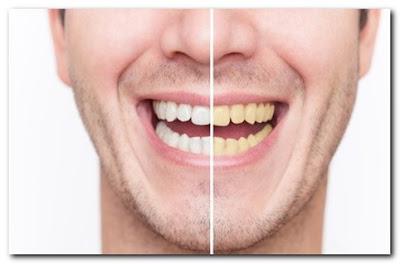 Membongkar 3 Mitos Kesehatan Gigi Yang Salah!