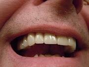 Bau Mulut? Berikut Cara Menghilangkan Bau Mulut