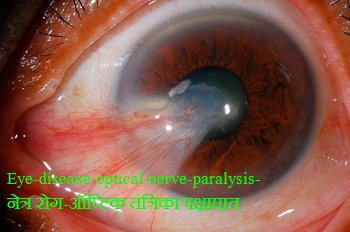 optical-nerve-paralysis