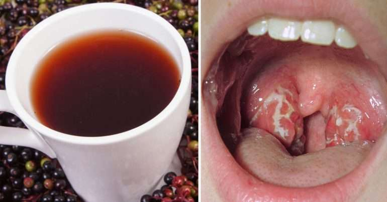 10 Natural Remedies To Fight Strep Throat