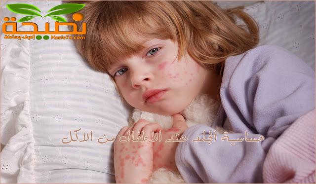 حساسية الجلد عند الاطفال من الاكل