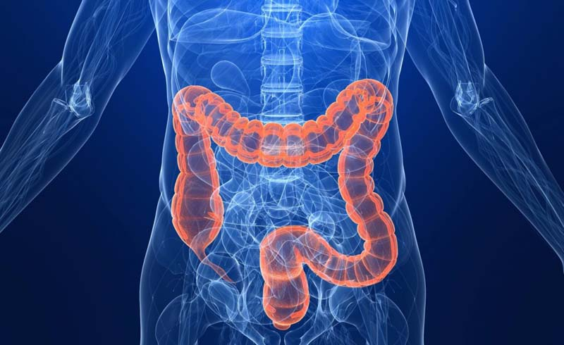 6 Silent Symptoms of Colon Cancer You Might Be Missing