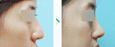 짱이뻐! - Korean Rhinoplasty - Nose Revision