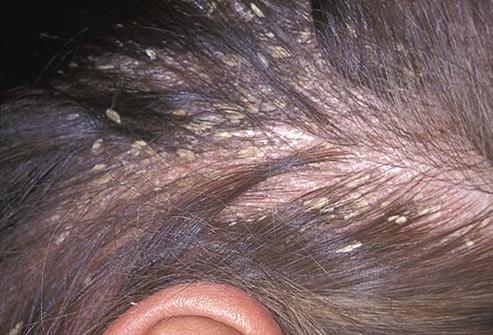 Obat Herbal Kulit Kepala Gatal Dan Bersisik | Obat Perapat ...