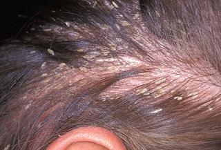 obat kulit kepala gatal dan berkerak yang paling ampuh
