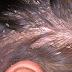 Mengobati Kulit Kepala Gatal - Temukan Penyebab dan Gejala