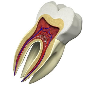 trám răng bị gãy có được không -2