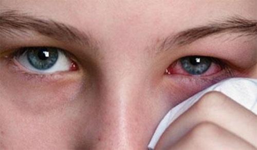 mengobati mata merah