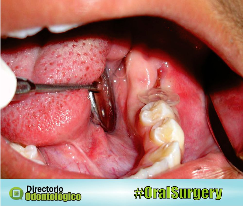 cyst-oral-surgery