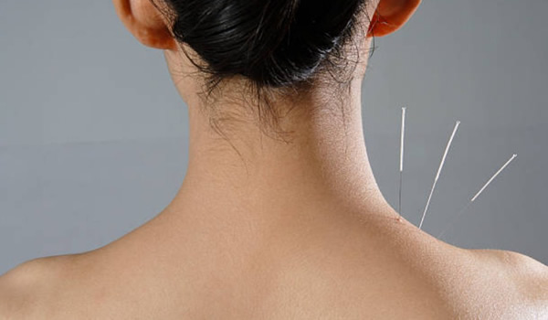 Acupuncture for Neck Pain: How Does It Work? [Infographic]