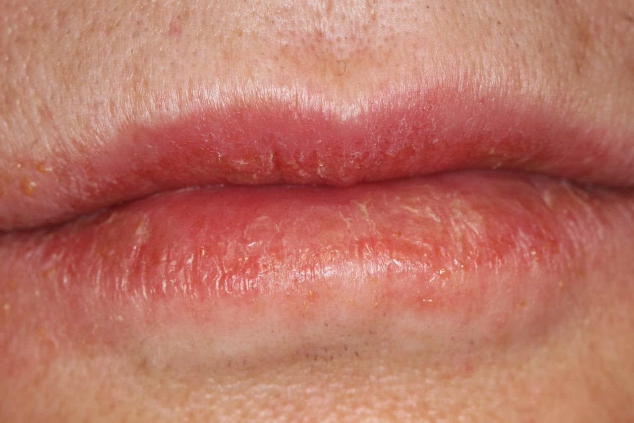 First sign of herpes in men