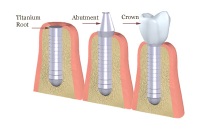 Dental Plans: Crown, Filling, Root Canal - No Waiting Period