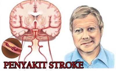 Cara Mudah Mencegah Penyakit Stroke