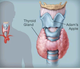 5 Factors That Causes Hashimoto's Thyroiditis Disease You Should Know