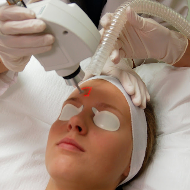 laser treatment acne