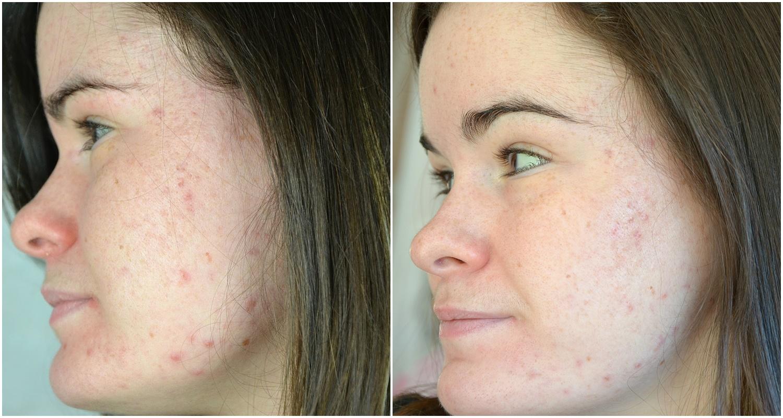 Troisième moi de traitement contre l'acné (mars 2017) côté gauche comparaison février et mars 20217