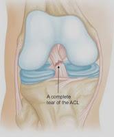 Ruptur Anterior Cruciate Ligament (ACL)